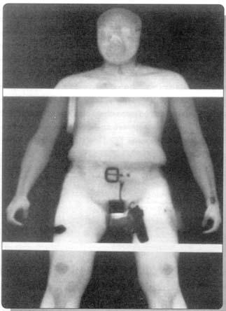 """Рис. 6. Фронтальное изображение в обратно рассеянном рентгеновском излучении одетого террориста, полученное с помощью системы """"BODYSEARCH""""."""